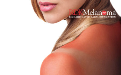 A Melanoma Risk Prediction Model and Populations at Increased Risk of Developing Melanoma