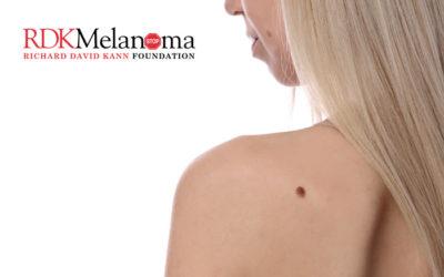 Moles Do Not Equal Melanoma
