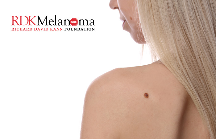 Moles Do Not Equal Melanoma